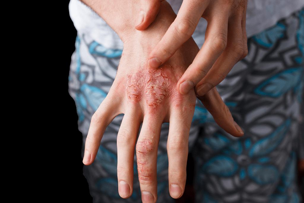 درمان جای جوش و زخم با روغن زنجبیل