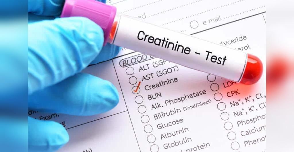 چیست؟ Creatinine در  آزمایش خون
