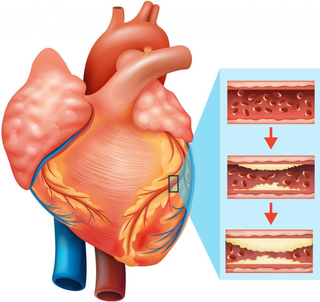 کلسترول خون چیست؟