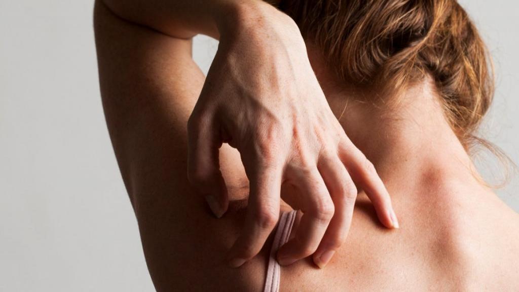 هر آنچه باید در مورد بیماری گال بدانید: انواع، علل، روش تشخیص، درمان و پیشگیری از آن