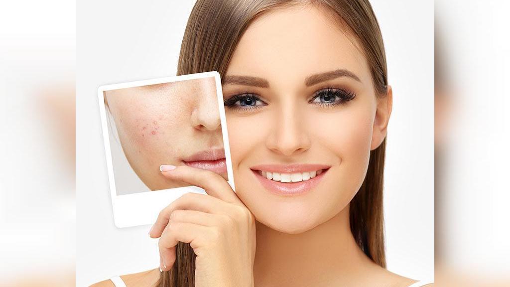 20  روش خانگی برای درمان سریع جوش صورت