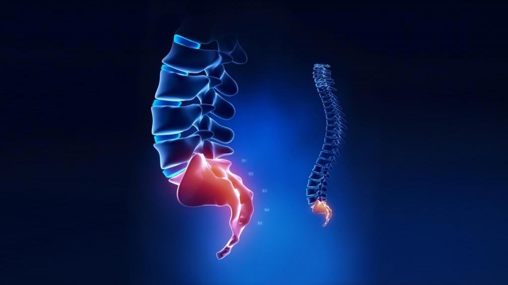 درد دنبالچه یا کوکسیدینی: دلایل، روش تشخیص، درمان، ورزش و شکل نشستن در هنگام درد دنبالچه