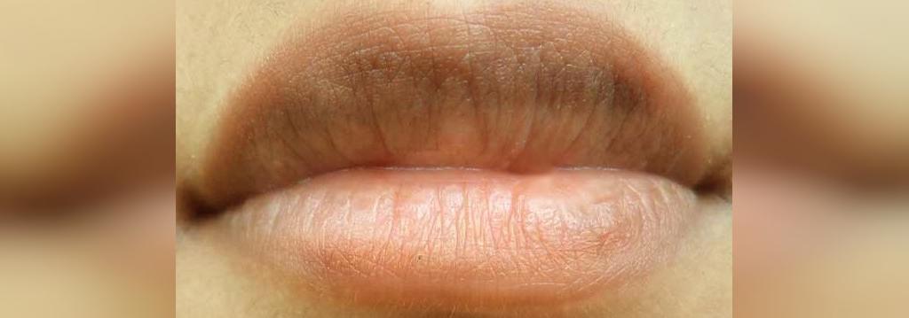 چه چیزی باعث تیره شدن لب ها می شود؟