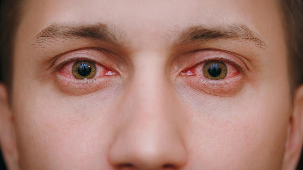 علائم استفاده از مواد مخدر