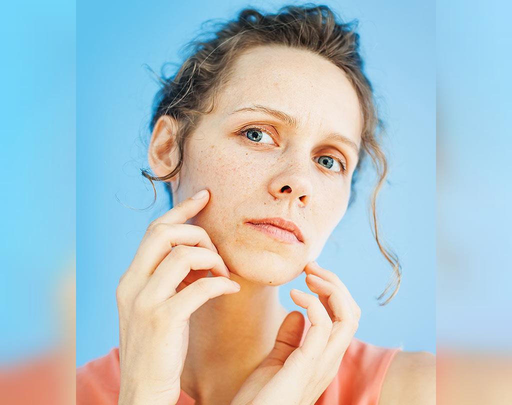 درمان  جوش با روغن زنجبیل