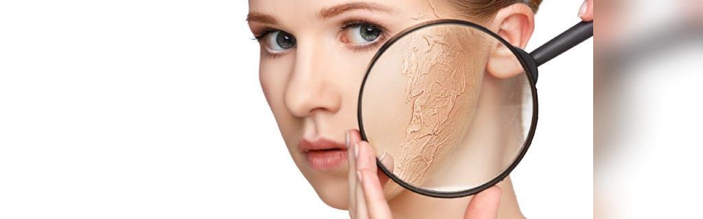 عوارض جانبی ماسک آسپرین در درمان جوش