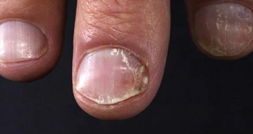پسوریازیس مفصلی از انواع بیماری پوستی صدفی