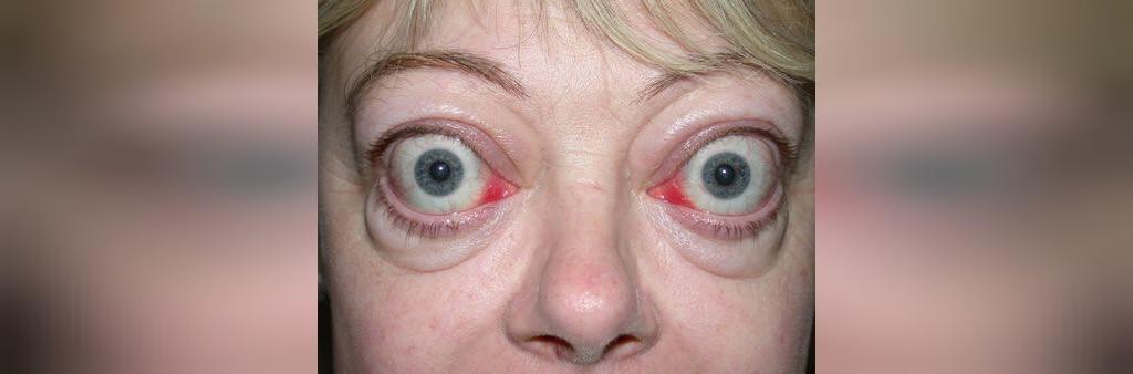 بیماری های که منجر به فشار به ناحیه پشت چشم می شود