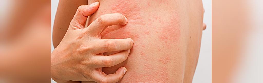 آلرژی به آلپرازولام