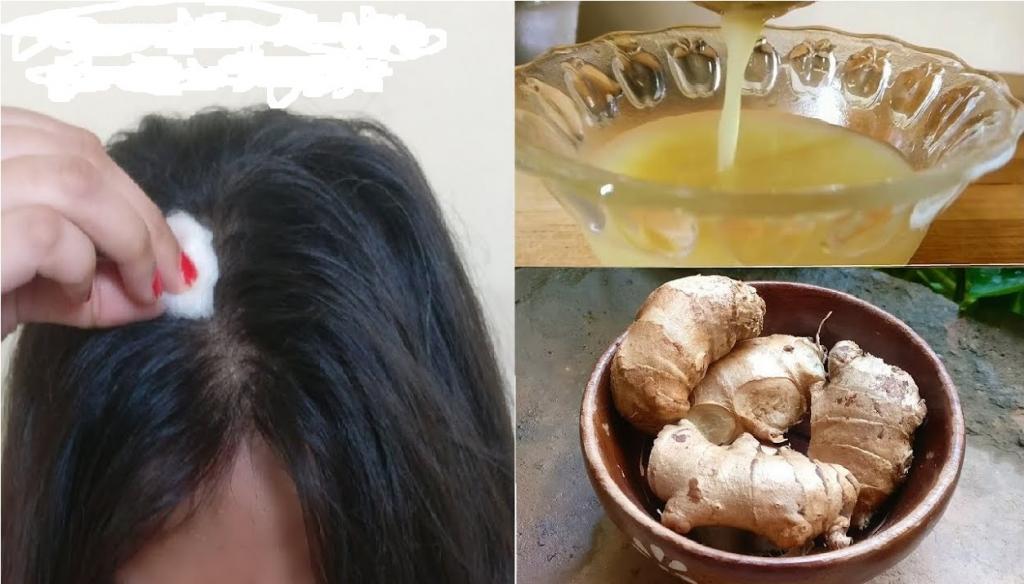 زنجفیل درمانی برای شوره سر