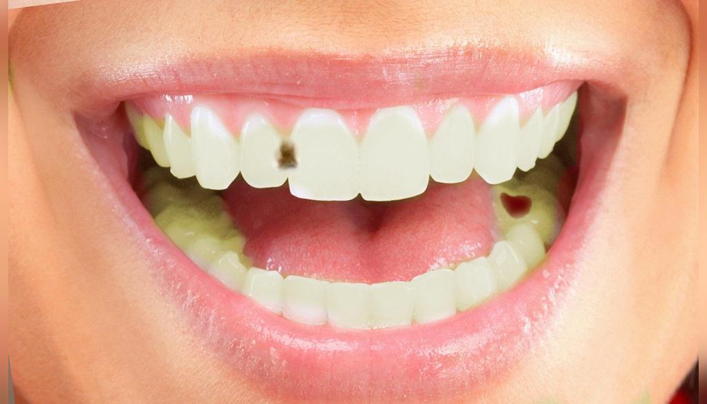کلاس بندی پوسیدگی دندان