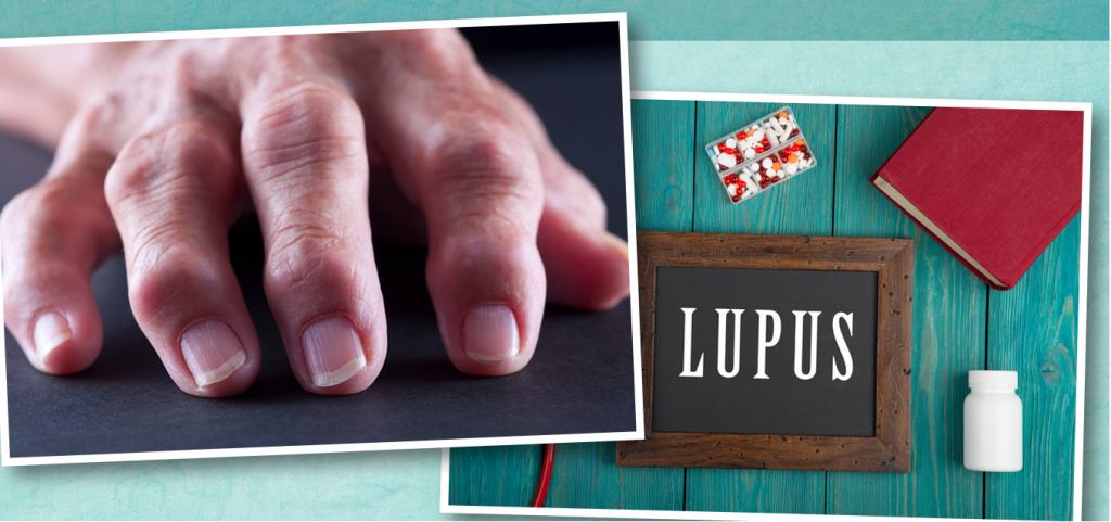 ناخن قرمز علامتی برای بیماری قلبی و لوپوس