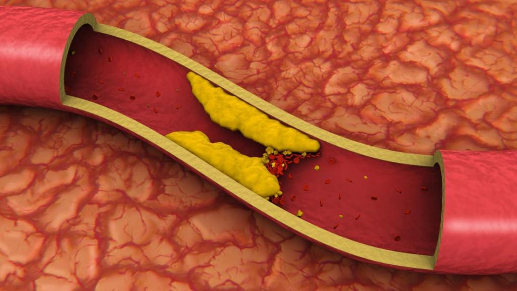 چربی های اشباع شده و افزایش احتمال ابتلا به سرطان