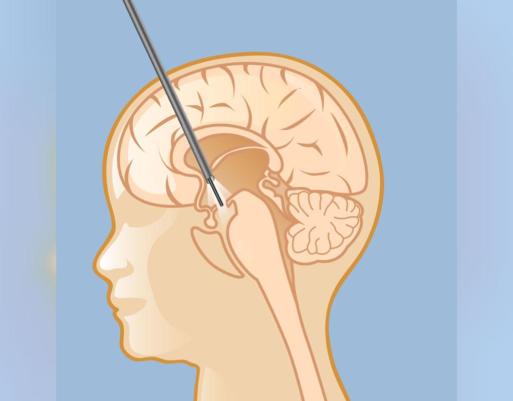 درمان بیماری هیدروسفالی یا آب آوردن مغز