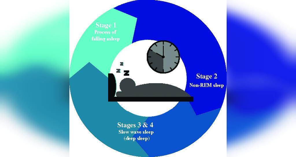 مراحل خواب غیر REM
