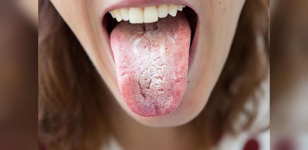 چرا انجام رابطه جنسی دهانی ممکن است باعث برفک دهانی شود؟