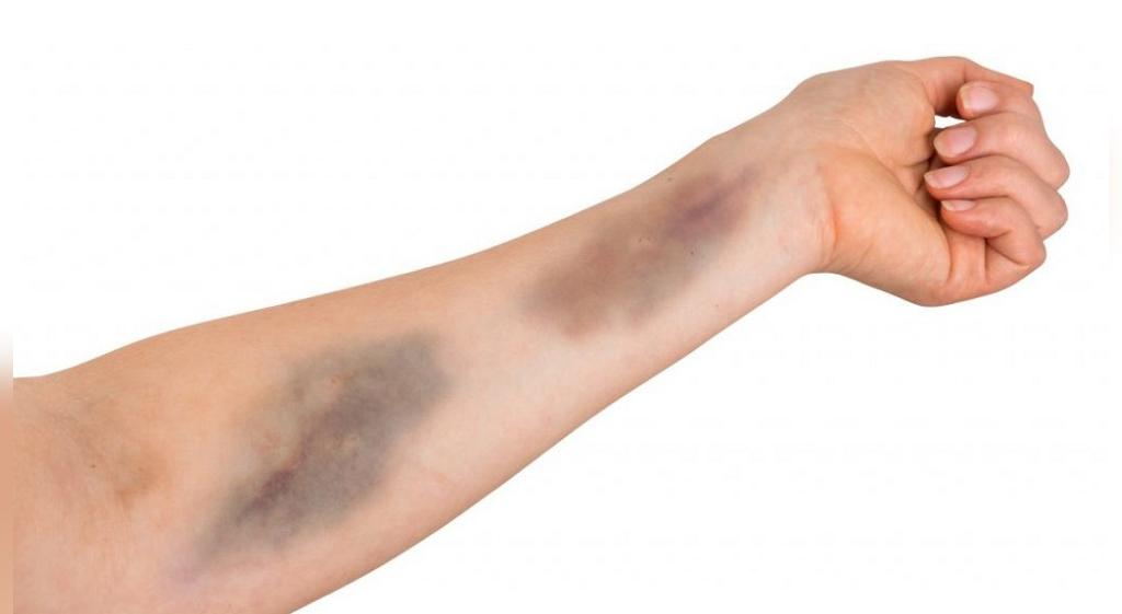 علائم کمبود پلاکت خون