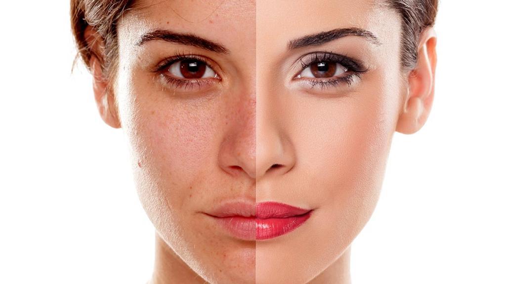 روش های درمان لکه های تیره روی پوست