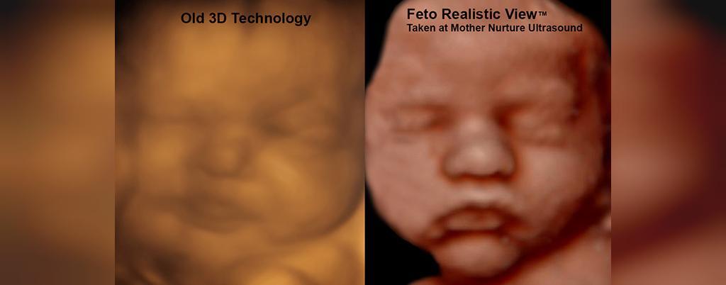 سونوگرافی چه نوع اطلاعاتی در مورد کودک می تواند ارائه دهد؟