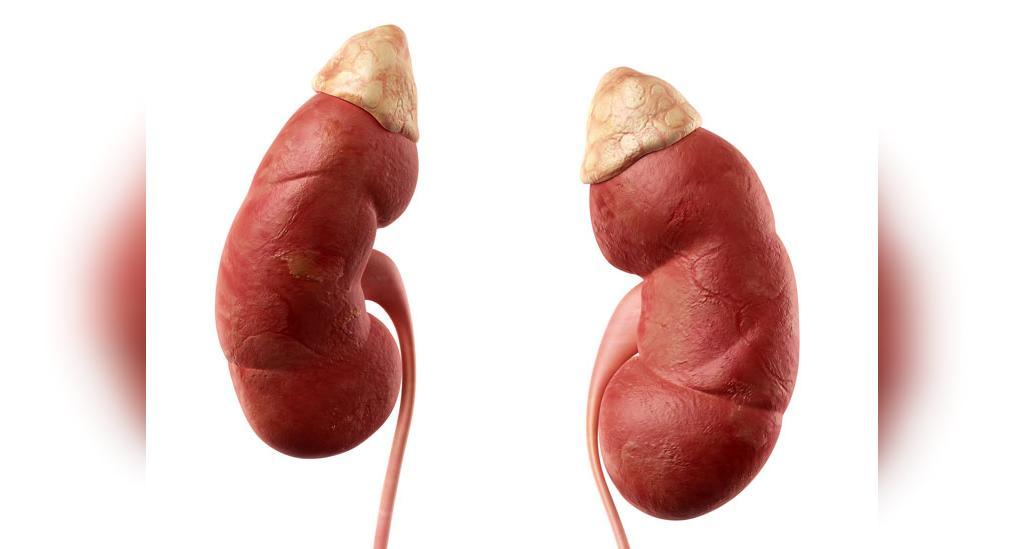 تومورهای غده های فوق کلیوی، عامل افزایش سطح کورتیزول