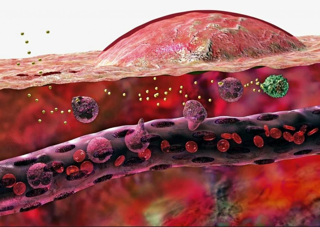 هر آنچه که باید در مورد التهاب یا ورم بدن بدانید