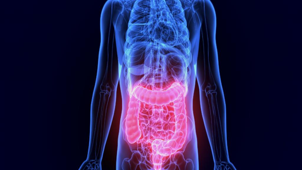 درمان سندرم روده تحریک پذیر با منشا استرس و رژیم غذایی مناسب برای درمان