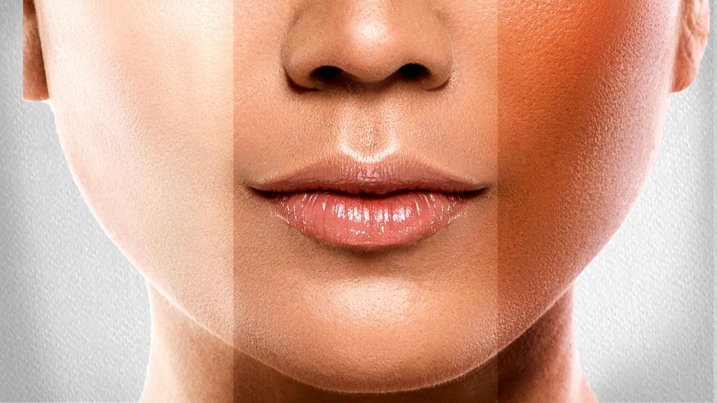 مضرات مصرف قرص سفید کننده پوست