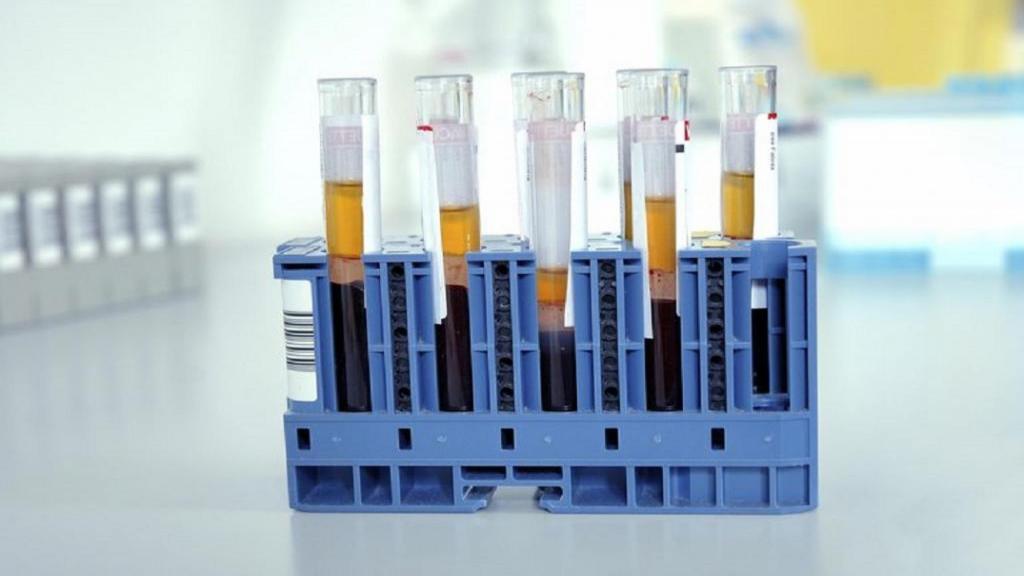 پرولاکتین بالا (هایپرپرولاکتینمی) چیست؛ علائم، علل، روش اندازه گیری و درمان آن