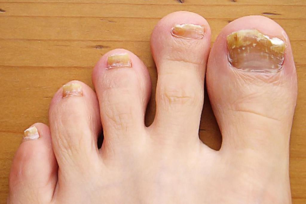 درمان قارچ ناخن انگشت پا با سرکه سیب
