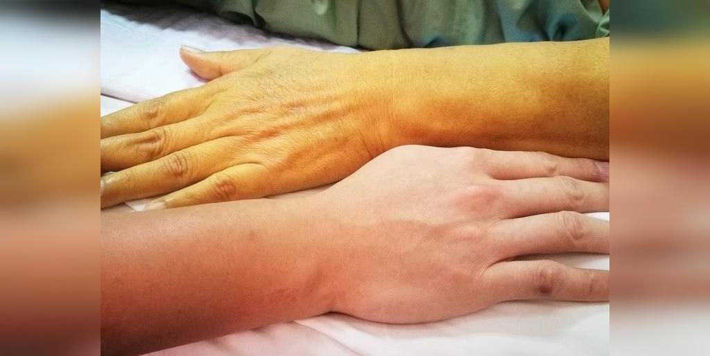 عوارض جانبی قرص انالاپریل