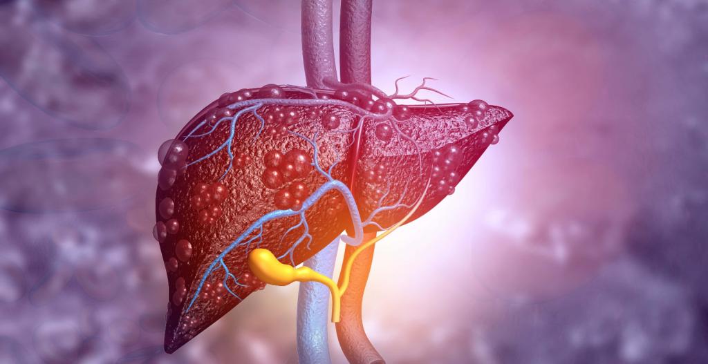 بیماری های کبدی چگونه درمان می شود؟