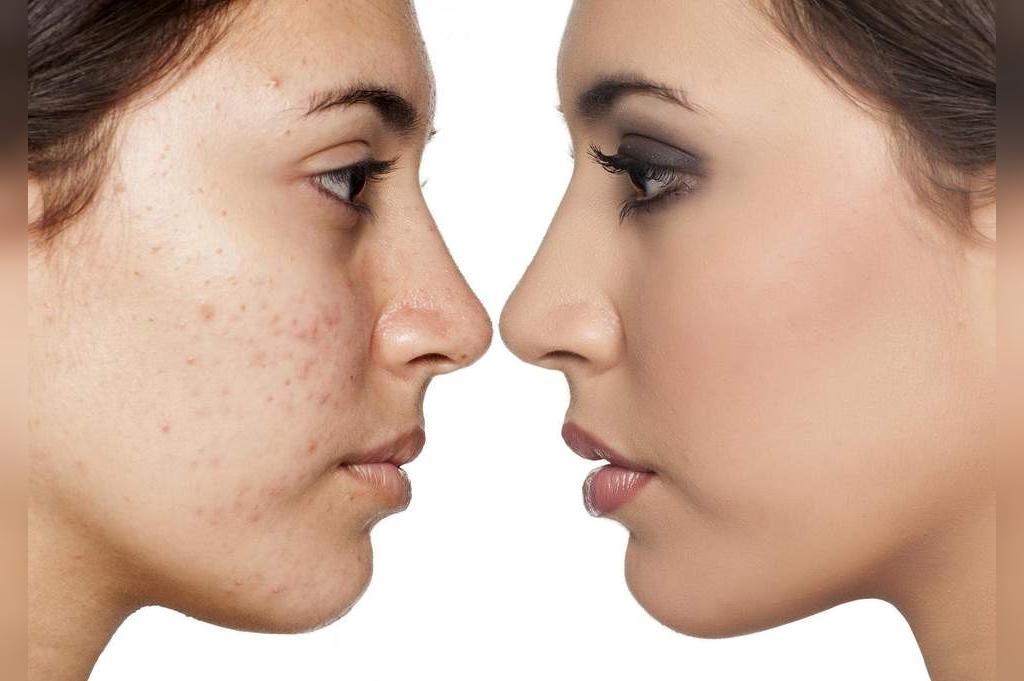 آکنه های پوستی بر اثر مصرف سیگار