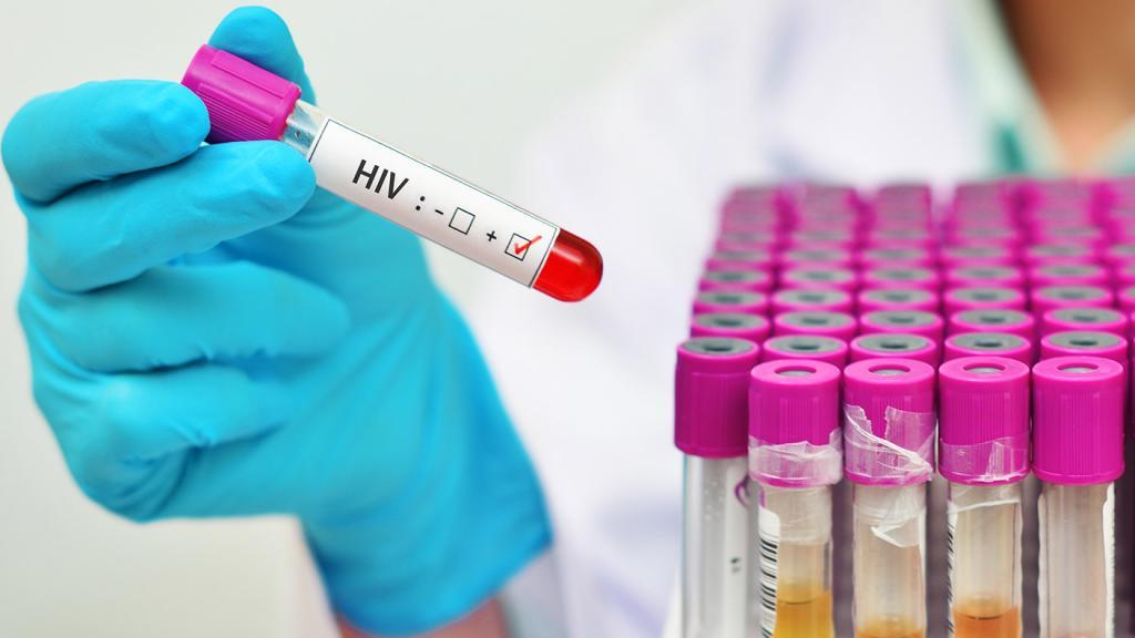 آزمایش ایذر و اچ آی وی