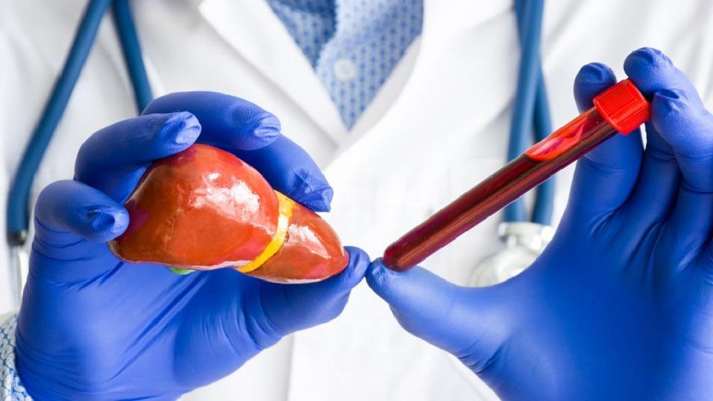 چگونه آزمایش کبد بدهیم؛ بالابودن آنزیم کبد چه خطراتی دارد؟