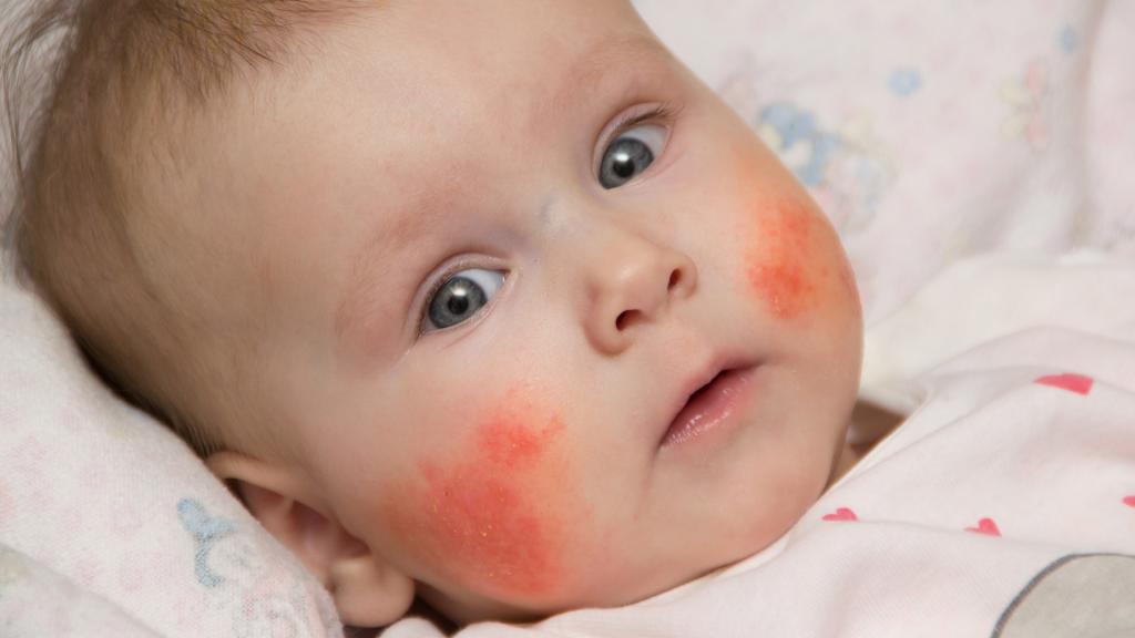 مواد موجود در شیر خشک کودک