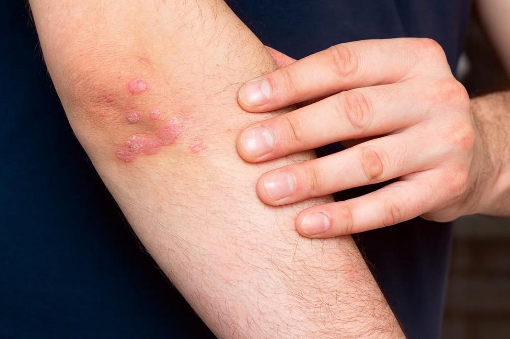 عوامل موثر در بروز قوس ناخن