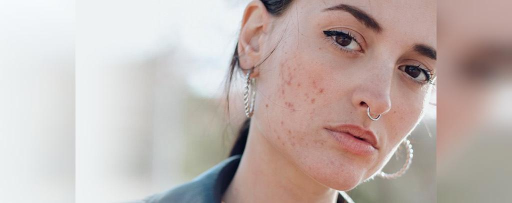 عوارض جانبی وینسترول برای زنان