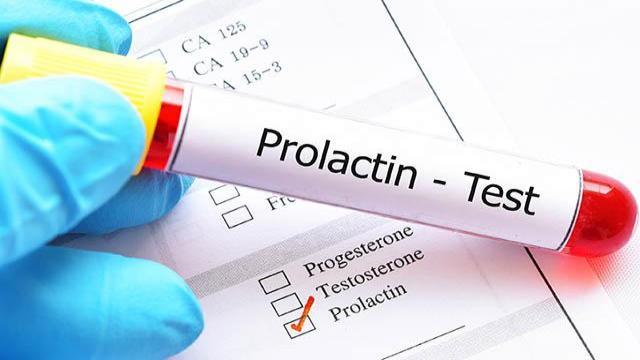 آزمایش پرولاکتین چیست؟ (کاربرد ها، نحوه انجام آزمایش و عوارض جانبی آن)