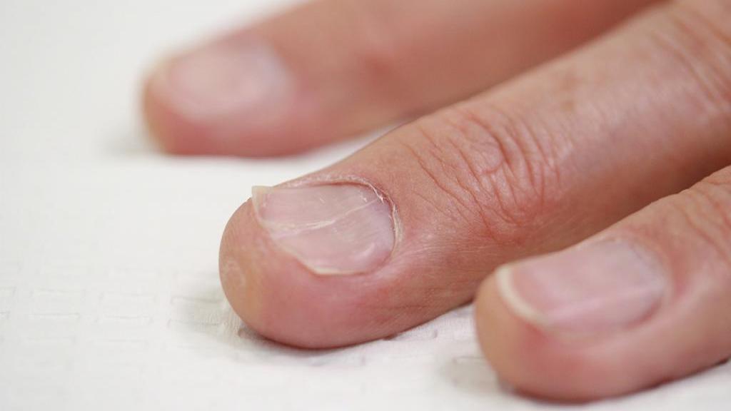 ناخن قاشقی (کویلونشیا) چیست + علت قاشقی شدن ناخن و درمان آن
