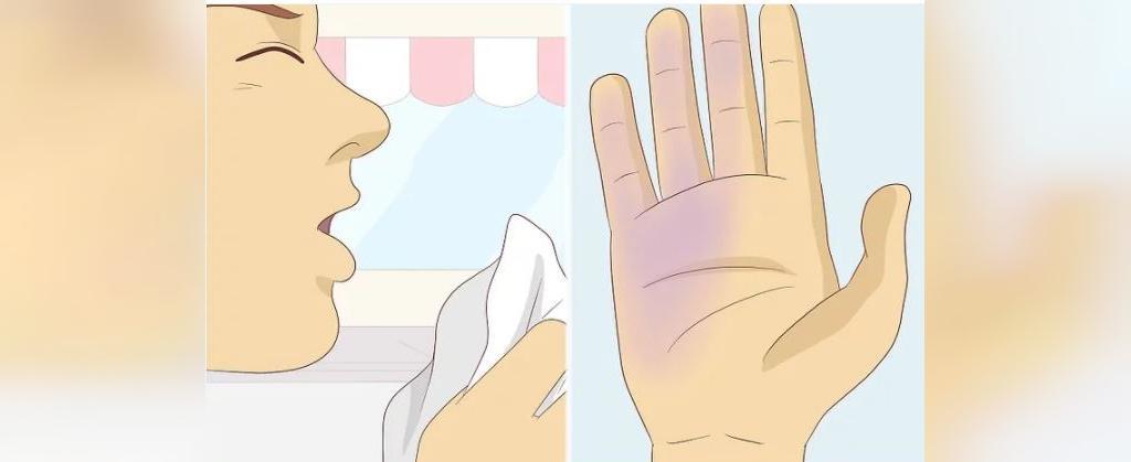 علائم تشخیص بین آنفولاانزا و کرونا