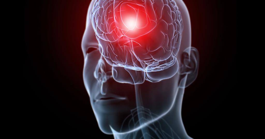 رایج ترین علت سردرد همراه با حالت تهوع