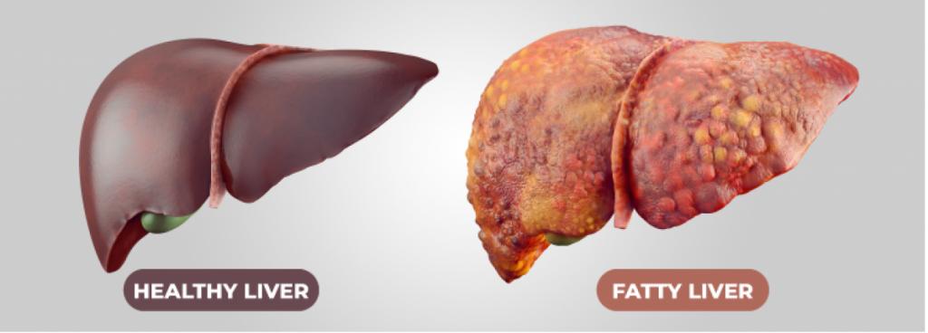 کبد چرب،  از علائم کمبود پروتئین