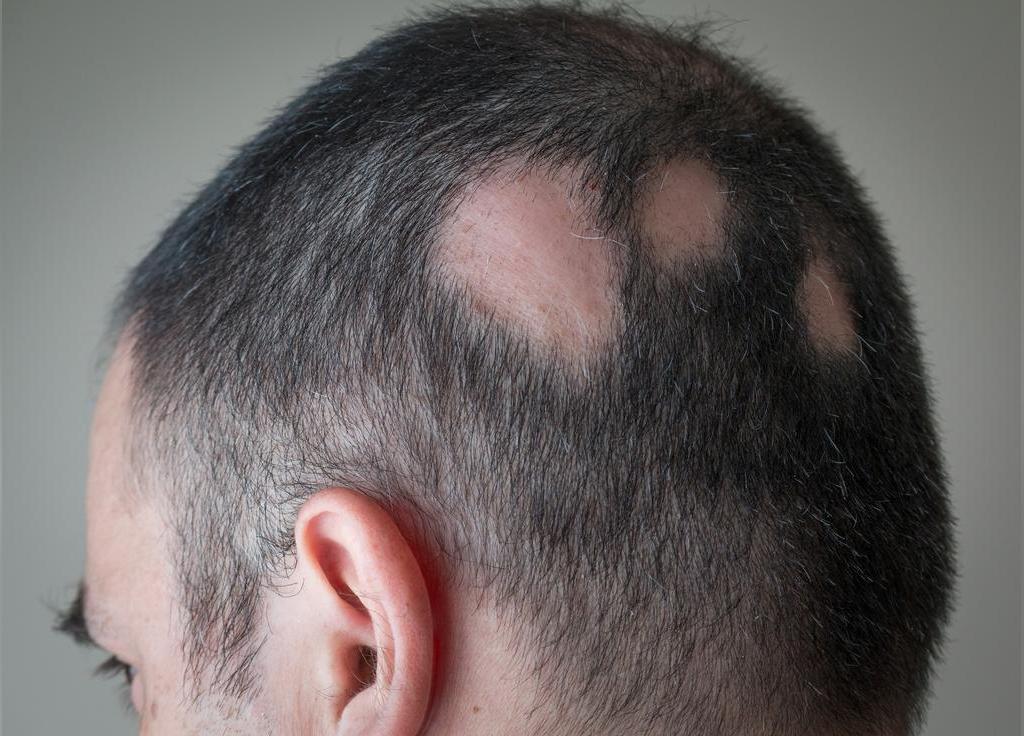 کمبود ویتامین d و ریزش مو