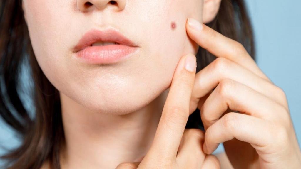 آیا برچسب جوش واقعاً موثر است؟ روش درمان جوش های سرسیاه و سرسفید با برچسب جوش صورت