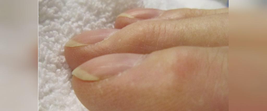 ناخن های منحنی علامت بیماری سندروم روده
