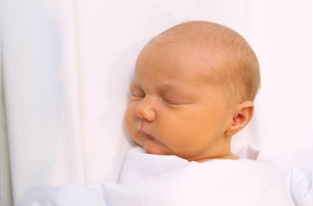 چرا زردی در نوزادان اتفاق می افتد؟