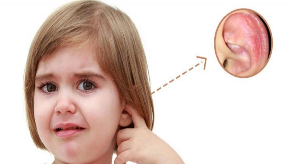 اگزما گوش؛ علائم، علل، راه تشخیص و درمان خانگی و پزشکی آن