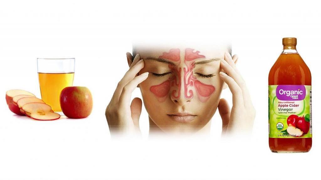 سرکه سیب؛ 3 درمان خانگی عفونت سینوس با استفاده از سرکه سیب