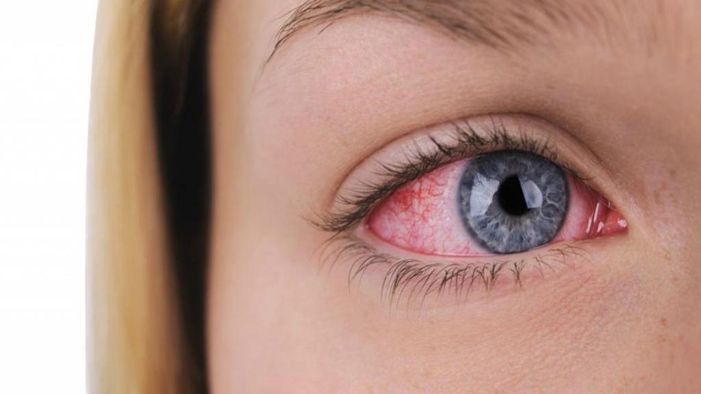 ساده ترین و طبیعی ترین روش ها برای درمان خانگی خشکی چشم