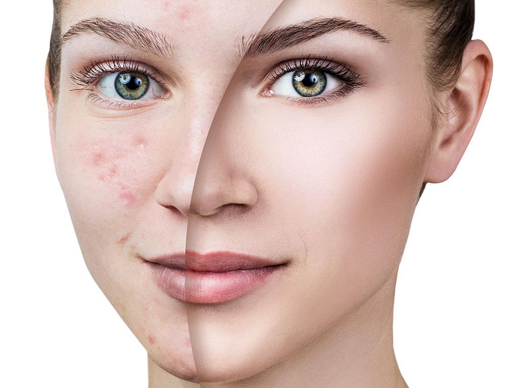 داروهای خوراکی برای درمان لک صورت و آکنه